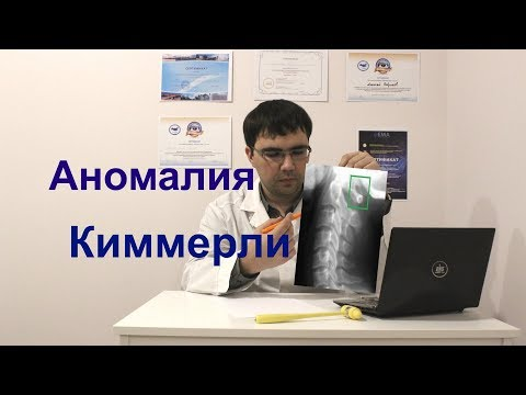 Аномалия Киммерли