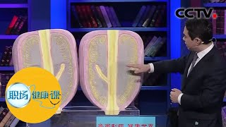 《职场健康课》 20200329 恼人的难题| CCTV财经