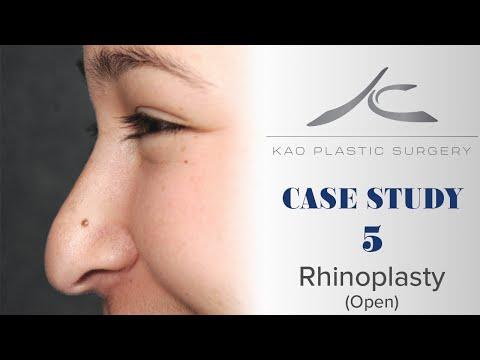Case Study 5: Melissa (Open Rhinoplasty)