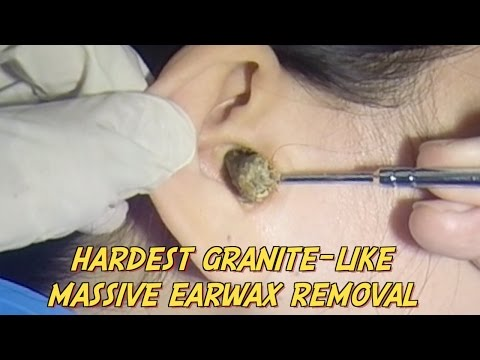Hardest Granite-like Massive Earwax Removal
