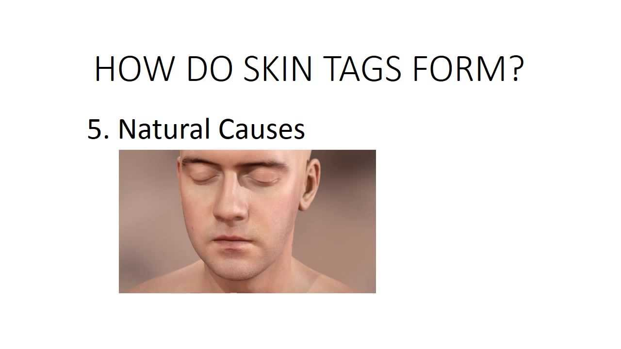 How Do Skin Tags Form? - YouTube