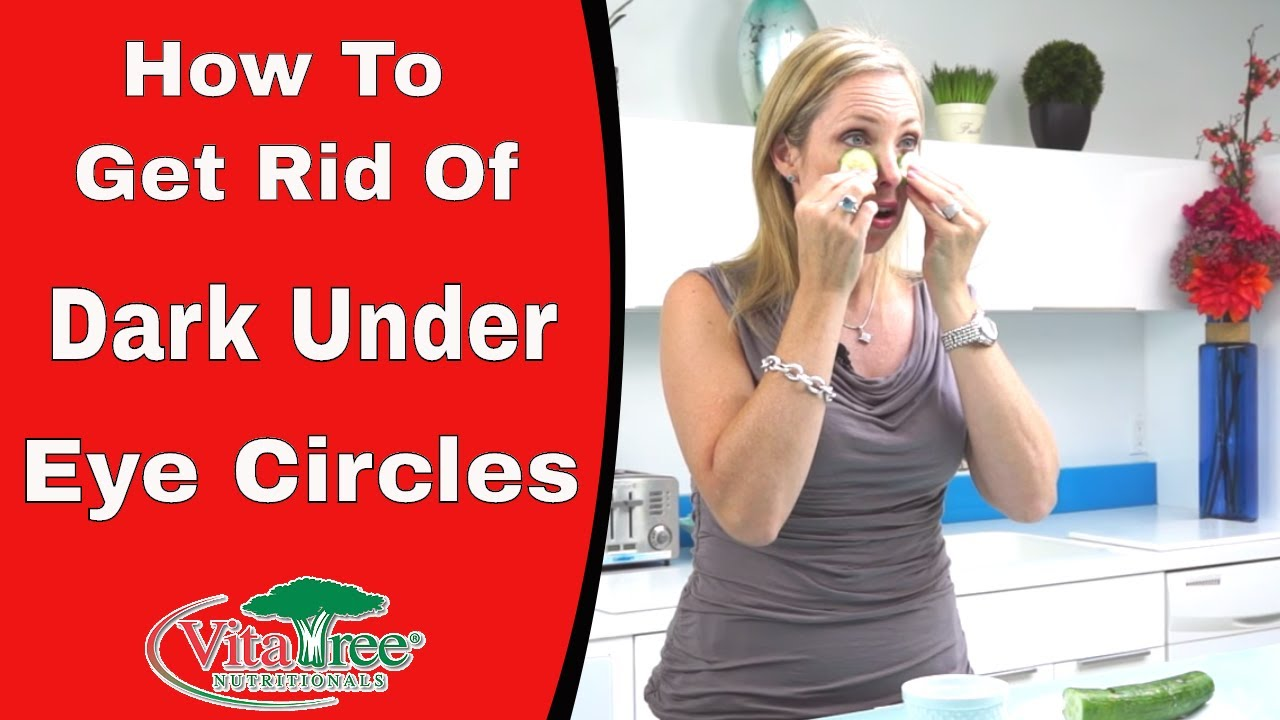 How To Get Rid of Dark Under Eye Circles : Natural Home ...
