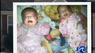 Baby died from blunt force trauma