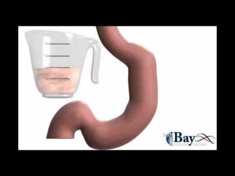 Bay Bariatric Surgery – Sleeve Gastrectomy Surgery