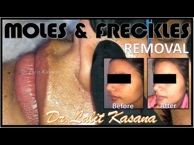 MOLES AND FRECKLES REMOVAL BY DR LALIT KASANA - clipzui com