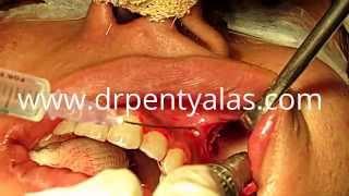 Facial Bone Contouring Surgery - Dr Pentyala Thumbnail