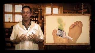 Remèdes de grands-mères #1 - Les mycoses