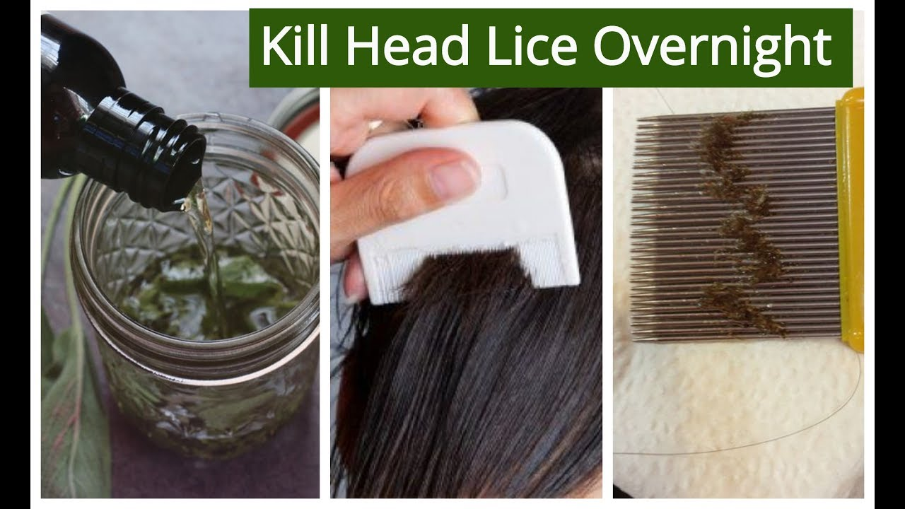 Homemade Hair Oil For Lice Nits Removal Kill Head Lice Nits