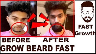 How To Grow A Beard fast 100% | Beard Growth Tips in Hindi + English | India