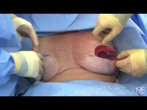 Staged breast reconstruction with tissue expander removal
