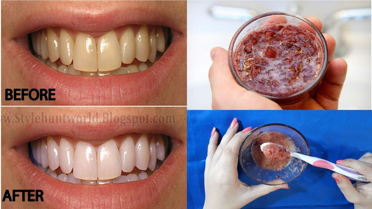 Best Teeth Whitening At Home Remedies Best Fastest Way To Whiten