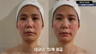 게리종효과 _ 일산피부관리 잘하는 금단비가 일산점