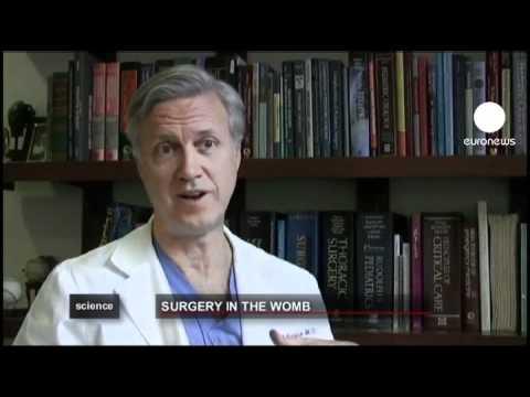 Лечение катаракты. Стоимость операции. Катаракта операция