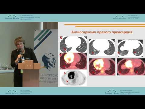 Лучевая терапия в онкологии. Последствия лучевой терапии