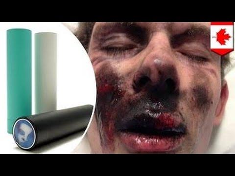 фото электронная сигарета взорвалась