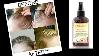 How To Use: GROW NEW HAIR Treatment + Does it work?  | LadyLuckTutorials