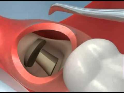 Рекомендации и процедуры после удаления зуба