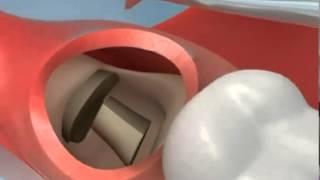 Смотреть видео усли что то осталось после удаления зуба и болит сильно десна