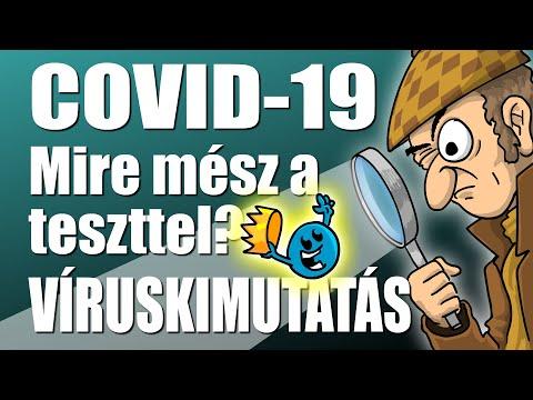 COVID-19: Mire mész a teszttel? VÍRUSKIMUTATÁS (Meg egyebek...)