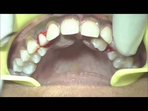 Extraction of retained primary maxillary canines