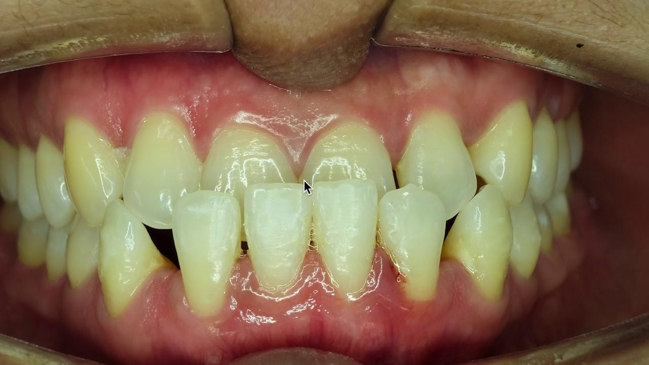 неправильный прикус зубов картинки славяне, носили