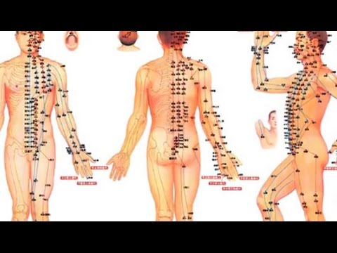 Que Es La Neuralgia Ciatica- Hogar Tv  Por Juan Gonzalo Angel