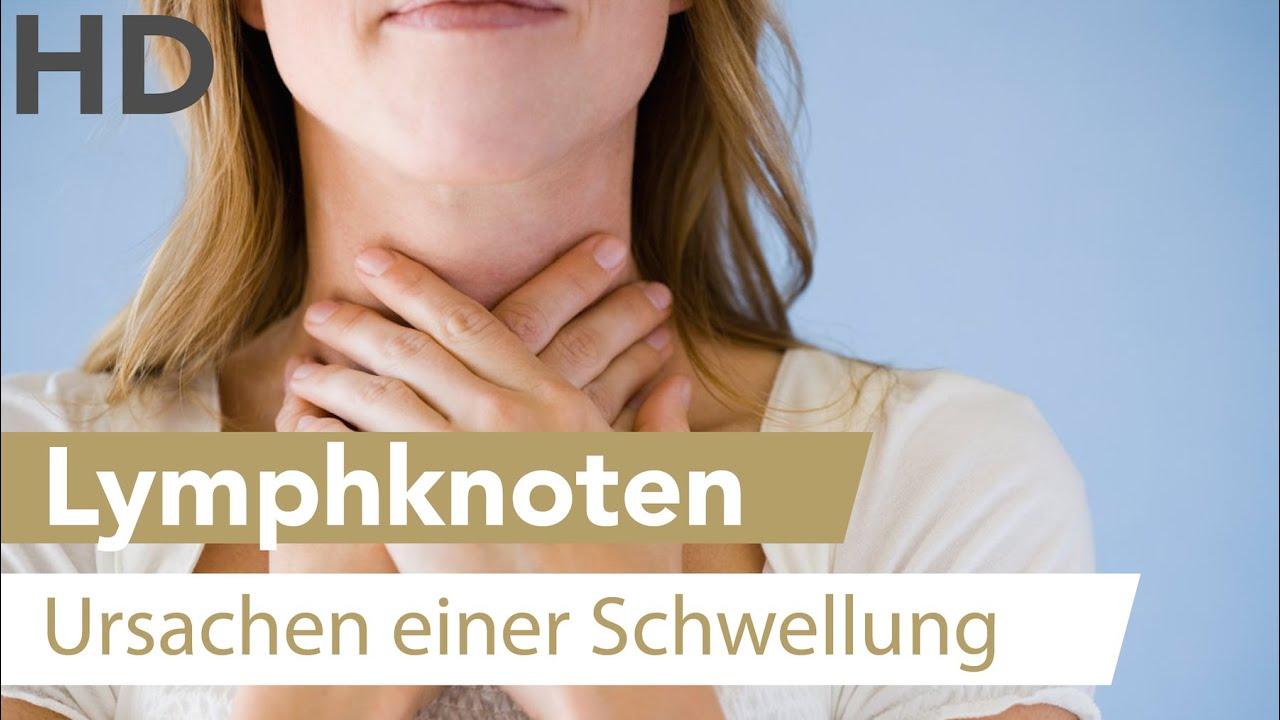 Geschwollene Lymphknoten / Halsschmerzen / Schleimbildung - Was sind ...