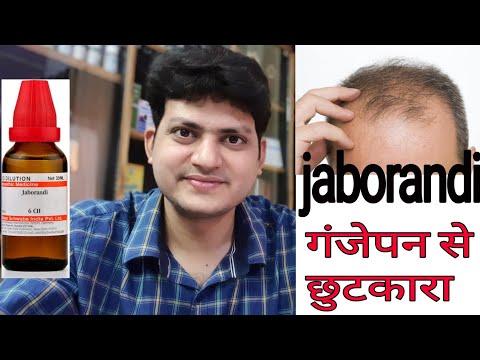 How To Use Jaborandi Mother Tincture In Alopecia & Hair Fall ? गंजापन और बालों का झड़ना !