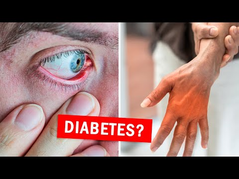 10 Early Signs of Diabetes You Shouldn't Ignore