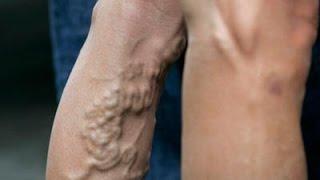 Vena varicosa duro nudo