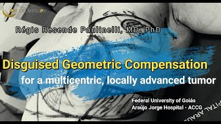 Disguised Geometric Compensation Mammoplasty for a multicentric, locally advanced tumor 2021
