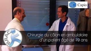 Chirurgie du côlon en ambulatoire d'un patient âgé de 79 ans - Capio Clinique de la Sauvegarde