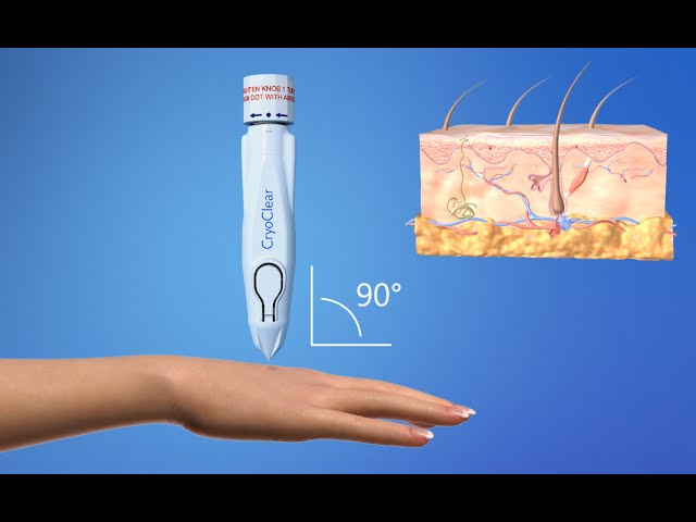 CryoConcepts - CryoClear Device - 3D Medical Animation