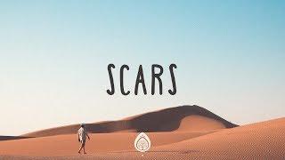 TobyMac ~ Scars (Lyrics)