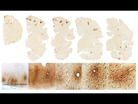 VA-BU-CLF Brain Bank Researchers find Stage III CTE in Aaron Hernandez's Brain