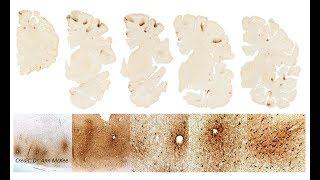VA-BU-CLF Brain Bank Researchers find Stage III CTE in Aaron Hernandez
