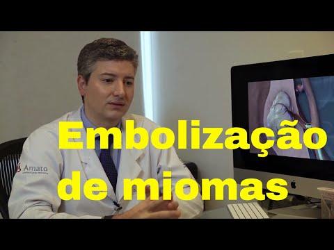 Embolização de Miomas - Instituto Amato