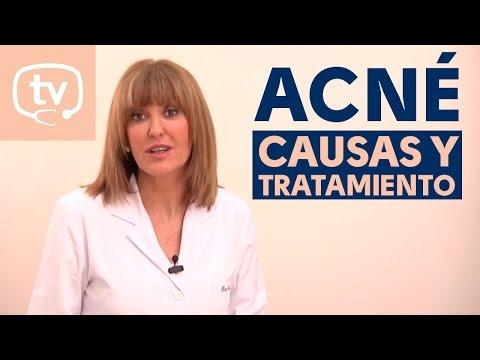 Causas y tratamiento del acné