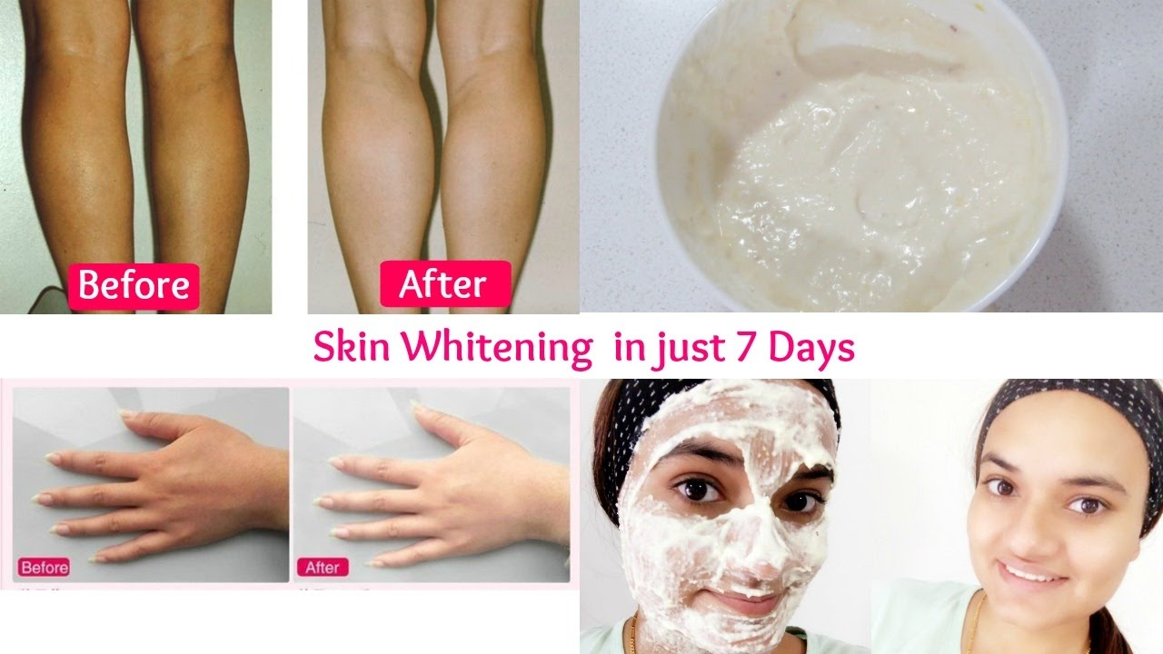 Whitening treatment as is indicated by comparison to the whitening - Skin Whitening Treatment In Just 7 Days Get Smooth Glowing Radiant Skin In Just 7 Days Youtube