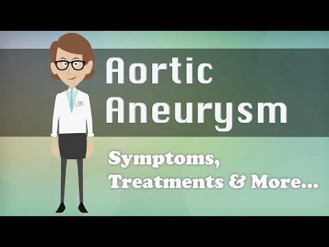 Aortic Aneurysm - Symptoms, Treatments & More…