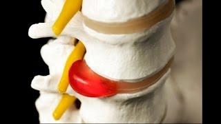 видео 4 эффективных способа сделать бег без травм