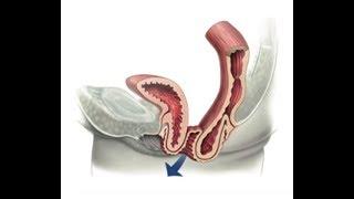 Хирургическое лечение выпадения влагалища после удаления матки. Оператор: Шкарупа Д.Д.