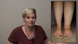Portraits by Peggy: Lymphedema My Story