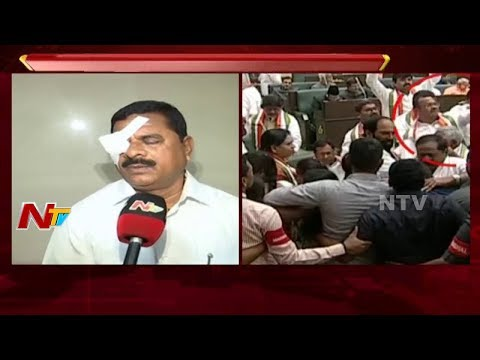Telangana Council Chairman Swamy Goud Face to Face    Injured in Assembly    NTV