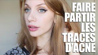 Faire partir les tâches d'acnés | HeyGlad
