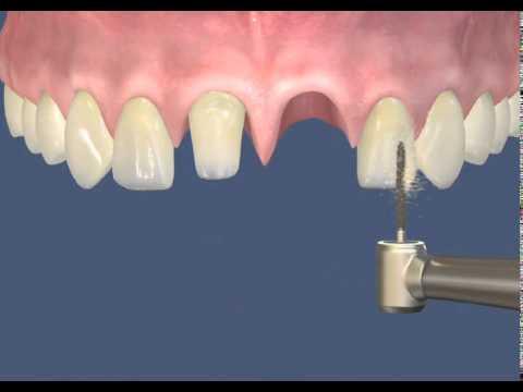 Циркониевые коронки на зубы: из оксида и диоксида циркония