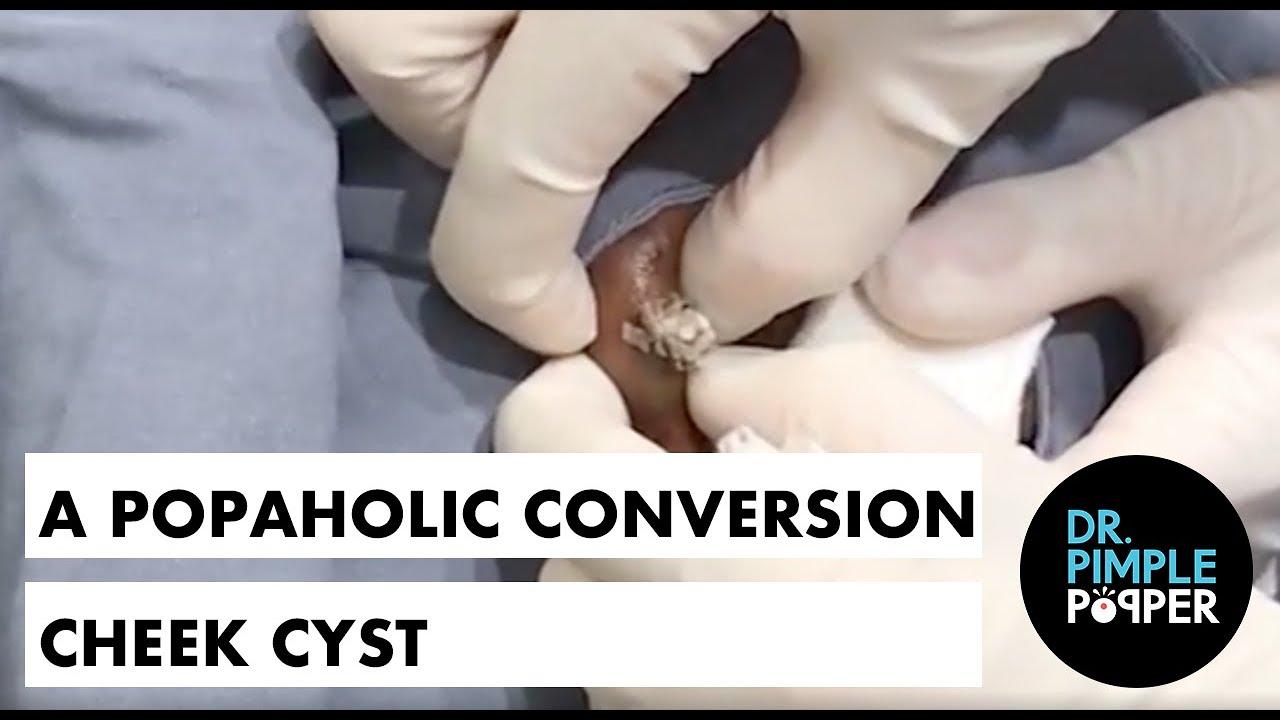 A Popaholic Conversion Cheek Cyst