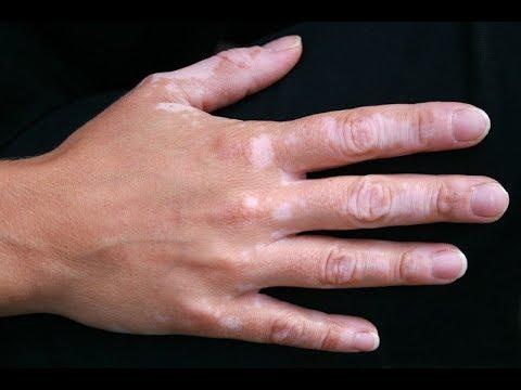 Вот что значат эти белые пятна на руке