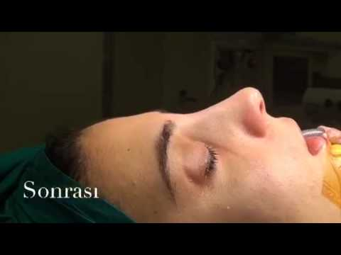 Before and After Rhinoplasty | Doç. Dr. Süleyman Taş