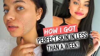 HOW I CLEARED MY SKIN IN 1 WEEK !